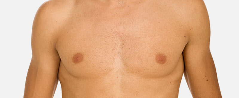Male Breast Reduction in London Clinic
