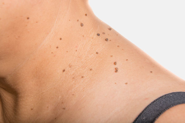 wart, skin tag mole removal in London, Wembley, Harrow and Uxbridge