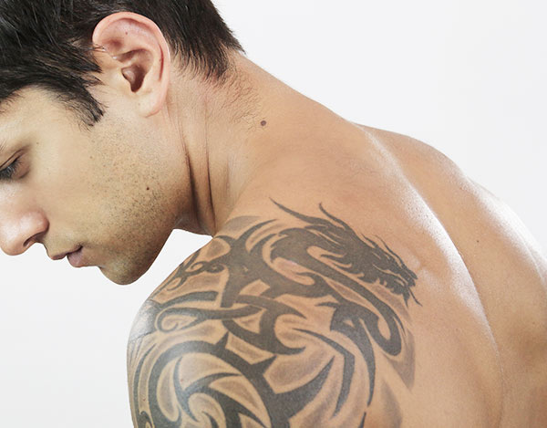 Tattoo removal clinic in Ruislip, London
