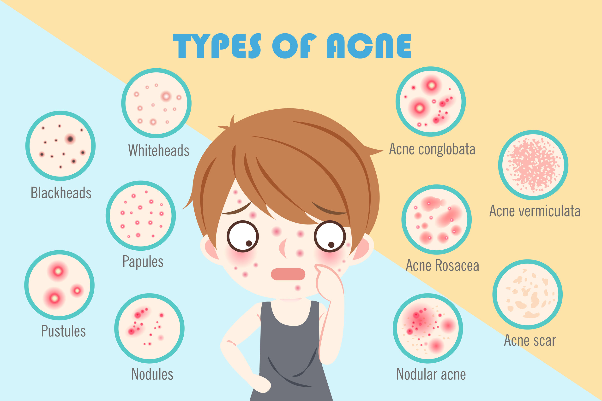 Type of acne