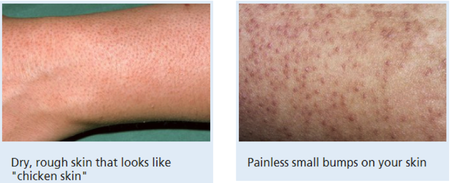 *Images from NHS website: https://www.nhs.uk/conditions/keratosis-pilaris/#treatment