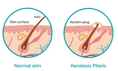Keratosis Pilaris Treatment in our clinic | Book a consultation
