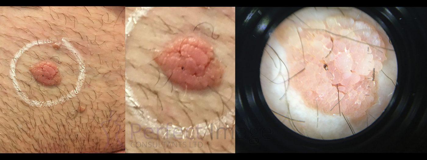 Mole Removal Dermascope