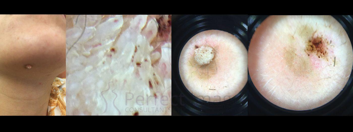 Dermascope image skin tag removal