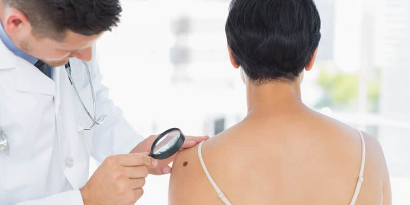 Perfect Image Consultants Mole Removal Ealing Skin Tag Removal Ealing
