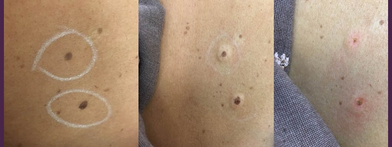 Mole Removal (before - just after)