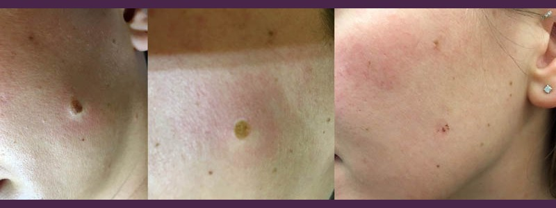 Mole Removal left side of cheek ( before - just after - 1 month after)
