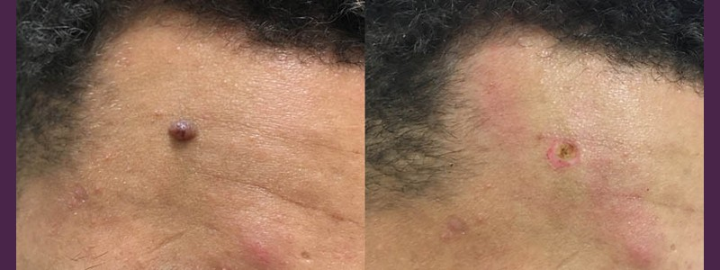 Mole Removal right side of the forehead ( before and just after the procedure)
