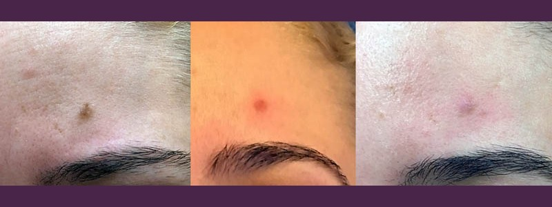 Mole removal above the left eyebrow (before - just after - 3 weeks after)