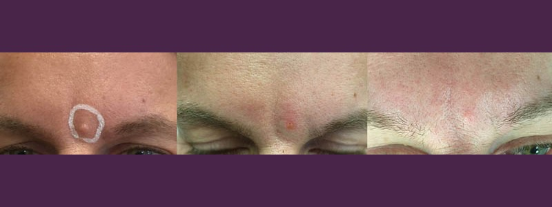 Mole removal between the eyebrows (before - just after - 2 months after)