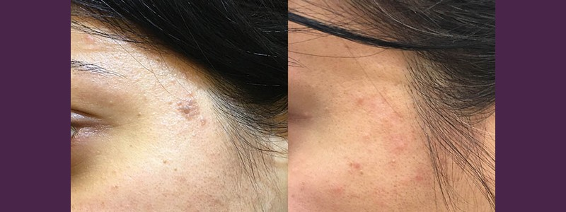Mole removal from the left side of the face ( before - 1 month after)