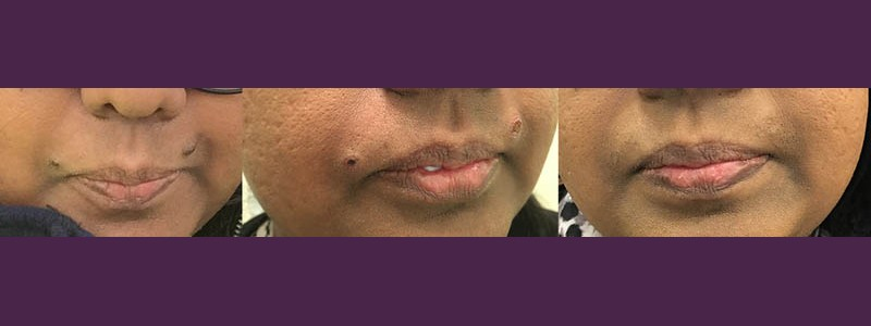 Mole removal from the top of the lip (before - just after - 3 months after)