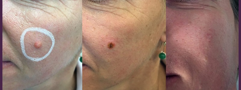 Mole removal left side of the face ( before- just after - 3 months after)