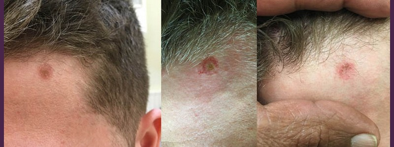 Mole removal on the left side of the hairline ( before - just after - 2 weeks after)