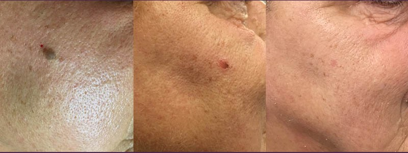 The right side of the cheek before just after procedure 3 months after