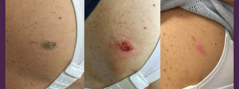 Seborrheic Wart Removal Side of the chest ( Before - just after the procedure - 2 months after)
