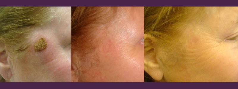 Seborrheic wart Removal - post-procedure - 3 weeks after - 2 months after