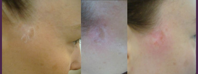 seborrheic wart of the right side of the face ( before - before - just after)